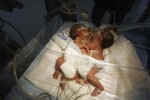 After a 7 hour surgery conjoined twin girls separated